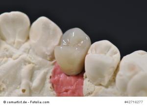 Teilkrone für Implantat